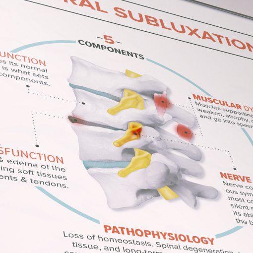 vertebral subluxation illustration