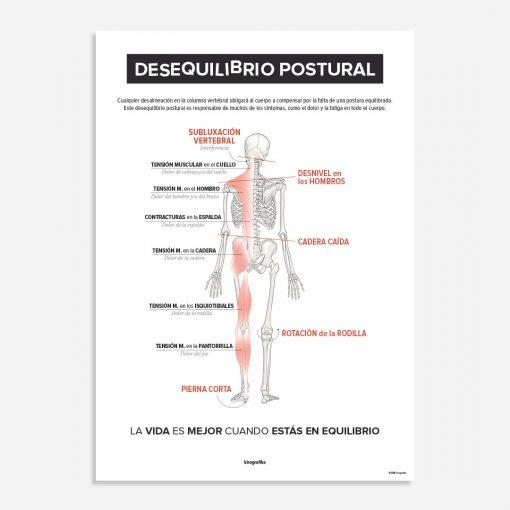 desequilibrio postural