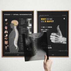 spinal degeneration xray poster