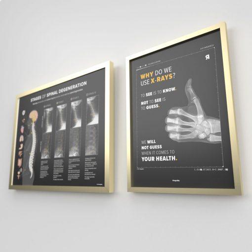 radiograph poster