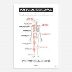 postural imbalance
