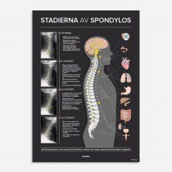 stadierna av spondylos